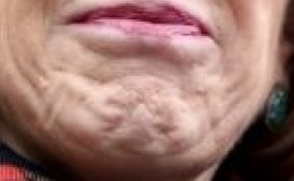 Carly Fiorina Chin Cellulite