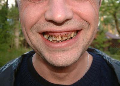 teeth-dirty