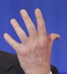 trump-tiny-hand