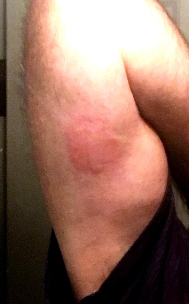sting-arm.jpg
