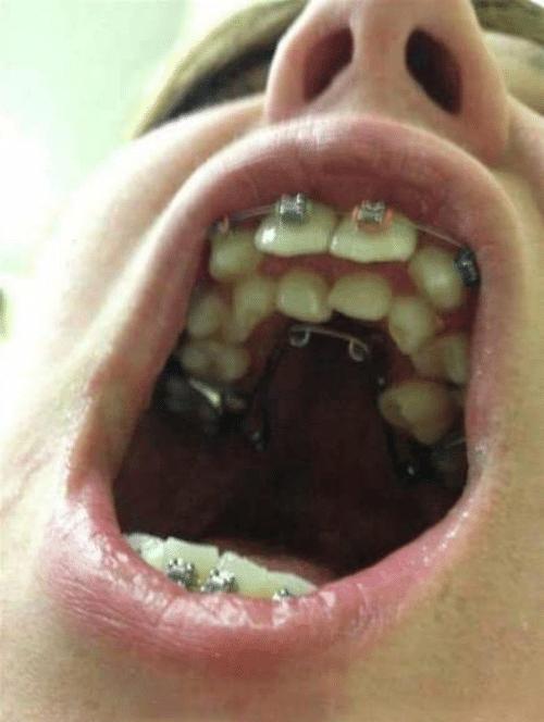 teeth too many
