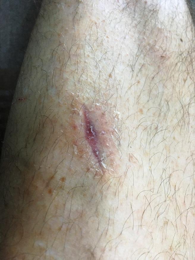 Leg Scar